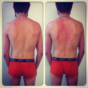 Kille med skolios, före och efter behandling.